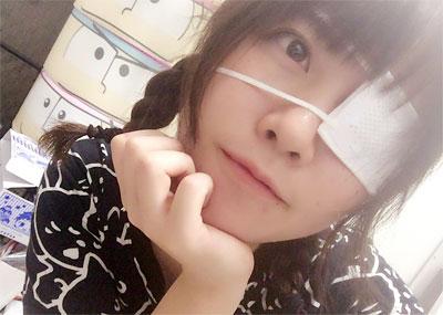 中二病が歓喜しそうな「眼帯」してる可愛い子の画像35枚!弱ってる女子に萌える方は→こちら。